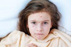 Close-up van leuk droevig meisje in bed Varicellavirus of de uitbarsting van de Waterpokkenbel op kind stock fotografie