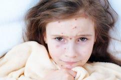 Close-up van leuk droevig meisje in bed Varicellavirus of de uitbarsting van de Waterpokkenbel op kind stock foto