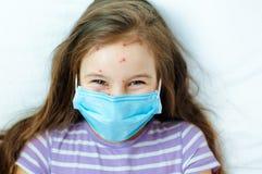 Close-up van leuk meisje Varicellavirus of de uitbarsting van de Waterpokkenbel op kind stock foto's