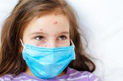 Close-up van leuk meisje Varicellavirus of de uitbarsting van de Waterpokkenbel op kind stock fotografie