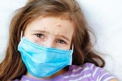 Close-up van leuk meisje Varicellavirus of de uitbarsting van de Waterpokkenbel op kind stock afbeelding