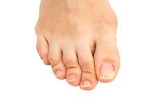 Close-up van menselijke voet met een gebarsten en spijker van de schilteen op de grootste teen Royalty-vrije Stock Fotografie