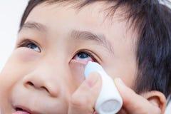 Close-up van ouder het gieten oogdalingen in oog haar zoon royalty-vrije stock afbeelding