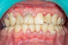 Close-up van persoons` s tanden na het verwijderen van en het schoonmaken van een plaqu royalty-vrije stock fotografie