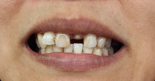 Close-up van slechte tanden Royalty-vrije Stock Afbeeldingen