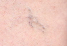 Close up Varicose veins on the skin.  Stock Photo