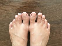Close-up view of bruise on toenail or injured black toenail on w. Bruise on toenail or injured black toenail on wooden floor, close up view, healthcare and Royalty Free Stock Images