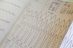 Close up view of an electrocardiogram paper, graphic stock photography