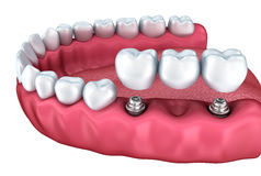 A close-up view of lower teeth and dental implants Stock Photos