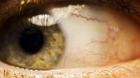 Close up of wide open red and irritated human eye stock image