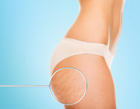 Close up of woman buttocks with cellulite Stock Photography