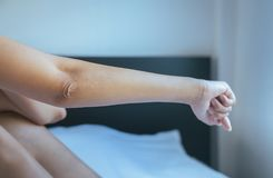 Close up of woman with dry skin on elbow and arm,Body and health care concept. Selective focus Royalty Free Stock Images