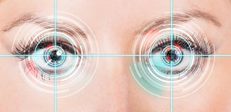 Close-up woman eyes with laser medicine. Royalty Free Stock Photography