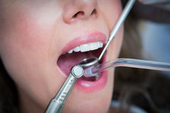 Close up of woman having her teeth examined Stock Photography