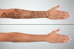 Woman`s Hand Before And After Laser Tattoo Removal. Close-up Of Woman`s Hand Before And After Laser Tattoo Removal Treatment stock images