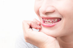 Close up woman smiling with Ceramic and Metal Braces on white ba Stock Photos