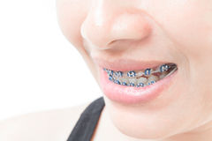 Close up woman smiling with Ceramic and Metal Braces on white ba royalty free stock image