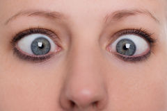 Close up, woman is squinting, concept strabismus and squint Stock Photo