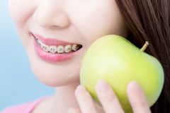 Close up woman take apple. Close up woman wear brace and take apple on the blue background Stock Photos