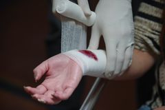 Close up of a wrist injured covered with a white gauze bandage Royalty Free Stock Photo