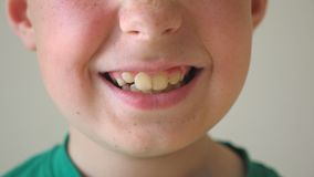 Close up of young child mouth smiling and laughing indoor. Portrait of handsome boy with glad expression on face. Happy. Kid with freckles showing joy inside stock video footage