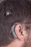Close up young man with cochlear implant Royalty Free Stock Photos