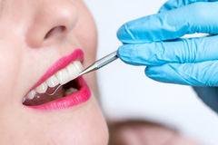 Close-up of young woman at dental visit Stock Image