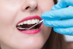 Close-up of young woman at dental visit Royalty Free Stock Photos