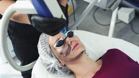 Close-upcosmetologist maakt de procedure van de koolstofschil, maakt de laserflits huid van geduldig gezicht schoon stock video
