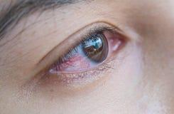 Close-upoog van Aziatische vrouw met gebroken haarvaten in het oog royalty-vrije stock afbeeldingen