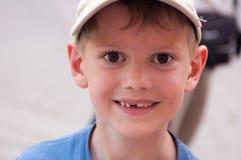 Close-upportret van een glimlachende jongen zonder één tand royalty-vrije stock afbeeldingen