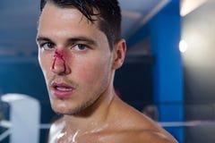 Close-upportret van jonge bokser met het aftappen van neus stock fotografie