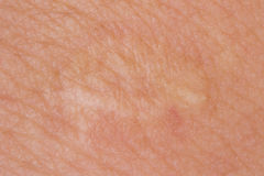 Scarring of the skin. Close-ups the scarring of skin Stock Images