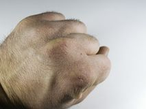 Close view of dry and cracked hand knuckles, skin problem.  Stock Photography