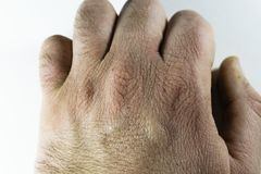 Close view of dry and cracked hand knuckles, skin problem. Concept Stock Photography