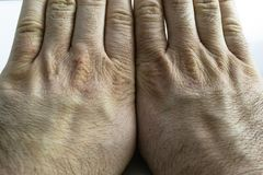 Close view of dry and cracked hand knuckles, skin problem. Two hands next to each other Stock Photos