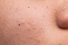 Closed-up of pimple blackheads on the cheek Royalty Free Stock Image
