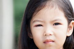 Closeup of asian child girl eye swell from bacteria Stock Photography