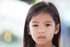 Closeup of asian child girl eye swell from bacteria Stock Image