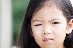 Closeup of asian child girl eye swell from bacteria Royalty Free Stock Images