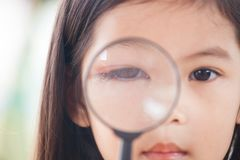 Closeup of asian child girl eye swell from bacteria virus. Looking through a magnifying glass Stock Images