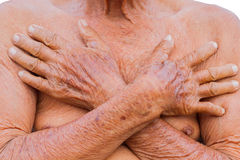 Closeup asian senior man chest with texture of two brown wrinkle Royalty Free Stock Photo