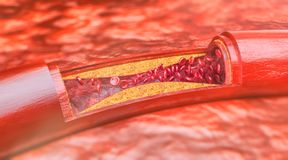 Closeup of a atherosclerosis- 3D rendering. Closeup of a atherosclerosis -- 3D rendering Royalty Free Stock Image