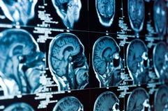 Closeup av en CT-bildläsning Arkivbild