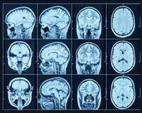 Closeup av en CT-bildläsning med hjärnan Vetenskaps- och utbildningsmribackg royaltyfri bild