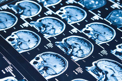 Closeup av en hjärna för CT-bildläsningskvinna royaltyfri bild