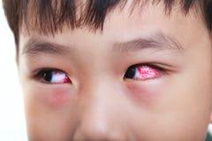 Closeup av kronisk bindhinneinflammation med en röd iris Royaltyfri Bild