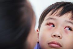 Closeup av kronisk bindhinneinflammation med en röd iris royaltyfri foto