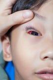 Closeup av Pinkeye (bindhinneinflammation) infektion på en pojke, doktor c royaltyfria bilder