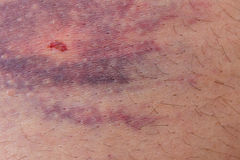 Closeup of bruise Royalty Free Stock Photography